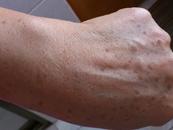 老年斑的消除方法