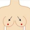 隆胸假体取出后会下垂?胸部下垂