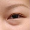 眼袋比黑眼圈可怕 2种去眼袋手术