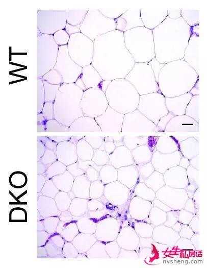 ▲缺失miR-181的小鼠(DKO),在高脂饮食的条件下,脂肪细胞的个头还是小小的,不像普通小鼠那样胀大(图片来源:参考资料[1])