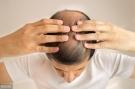 辟谣:植发可以一次性解决脱发问题?听医学专家告诉你真相
