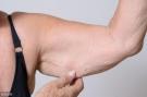 身体若出现这6个特征,说明你正在瘦下来了